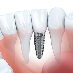 cheap dental implants