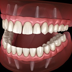 Dental Implants and Gum Disease | Staying Healthy