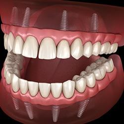 dental-implants-and-gum-disease